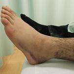 足首捻挫の施術について
