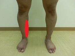 ふくらはぎや足底などの下肢の痛み