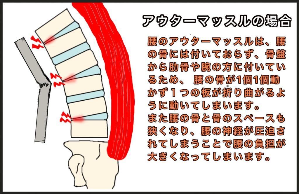 腰椎椎間関節圧迫